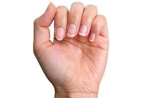 Pękanie paznokci: przyczyny, zapobieganie, leczenie