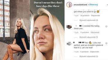 Infuencerka, Amanda Lekland, pokazała, co większość osób ukrywa w social mediach. Internauci jej teraz dziękują