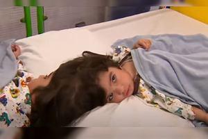 Bliźniaczki były zrośnięte głowami. Przez trudną decyzję chirurgów jedna z sióstr może nigdy nie chodzić