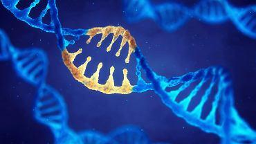 Zespół Seckela, zwany również karłowatością ptasiogłową, jest rzadka chorobą genetyczną