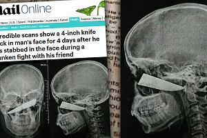 """25-latek spędził cztery dni z ostrzem noża wbitym w twarz, zanim usunęli je lekarze. Twierdzi, że go """"nie zauważył"""""""