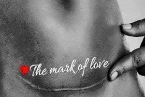 Blizna miłości - prawie co druga z nas ją ma