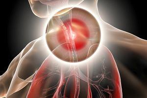 Dysfagia, czyli zaburzone połykanie. Przyczyny i objawy