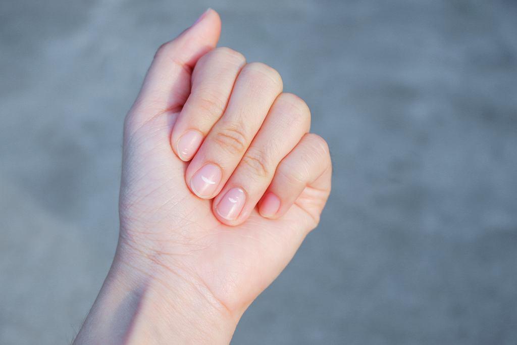 Białe plamki na paznokciach u dzieci mogą być objawem niedoborów. Zdjęcie ilustracyjne