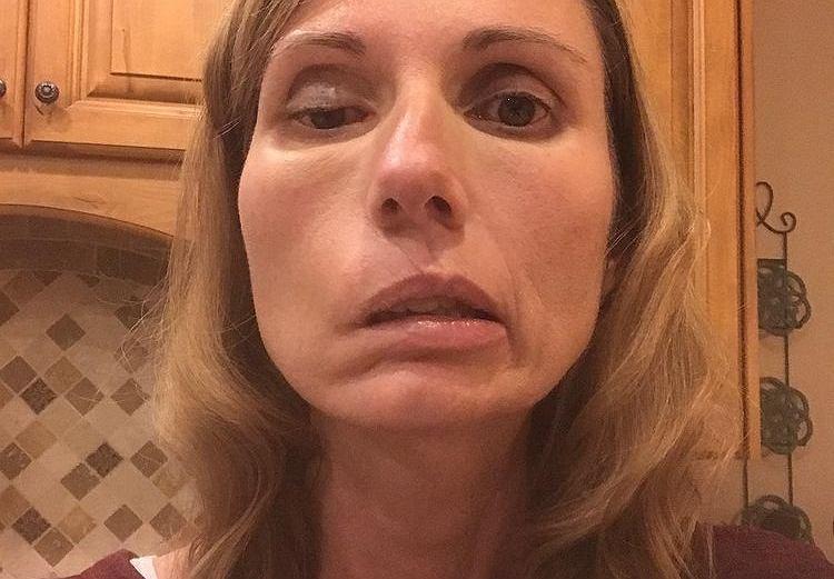 Mama czworga dzieci miała ciężki paraliż twarzy