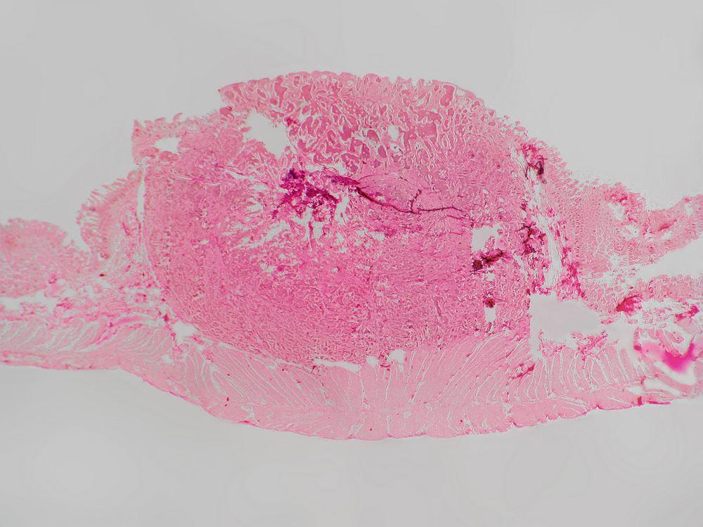 Somatostatinoma, to neuroendokrynny nowotwór