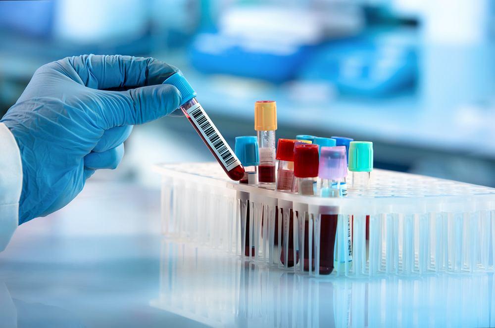 Próbki krwi w laboratorium