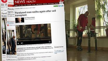 Sparaliżowany mężczyzna znów może chodzić