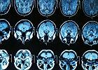 Czy można dobrze funkcjonować z połową mózgu? Najnowsze badania pokazują, jak to jest możliwe