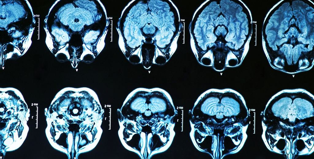Skany ludzkiego mózgu