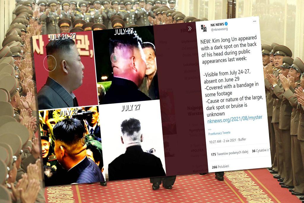 Plama na głowie Kim Dzong Una