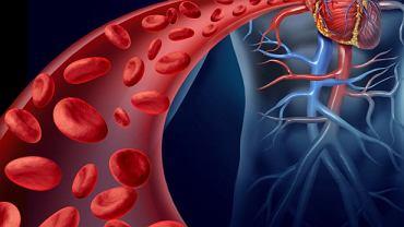 Choroby rozrostowe układu krążenia to grupa nowotworów krwi, które dotykają najczęściej dzieci i młodzież