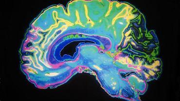 Zdjęcie mózgu badanego rezonansem magnetycznym