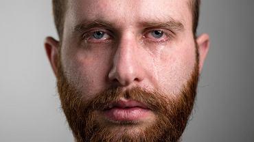 Przyczyn łzawienia oczu jest sporo. Czasem to nawet choroby ogólnoustrojowe