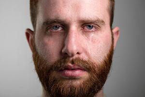 Łzawienie oczu - uciążliwy objaw, który nie musi być związany z chorobą narządu wzroku