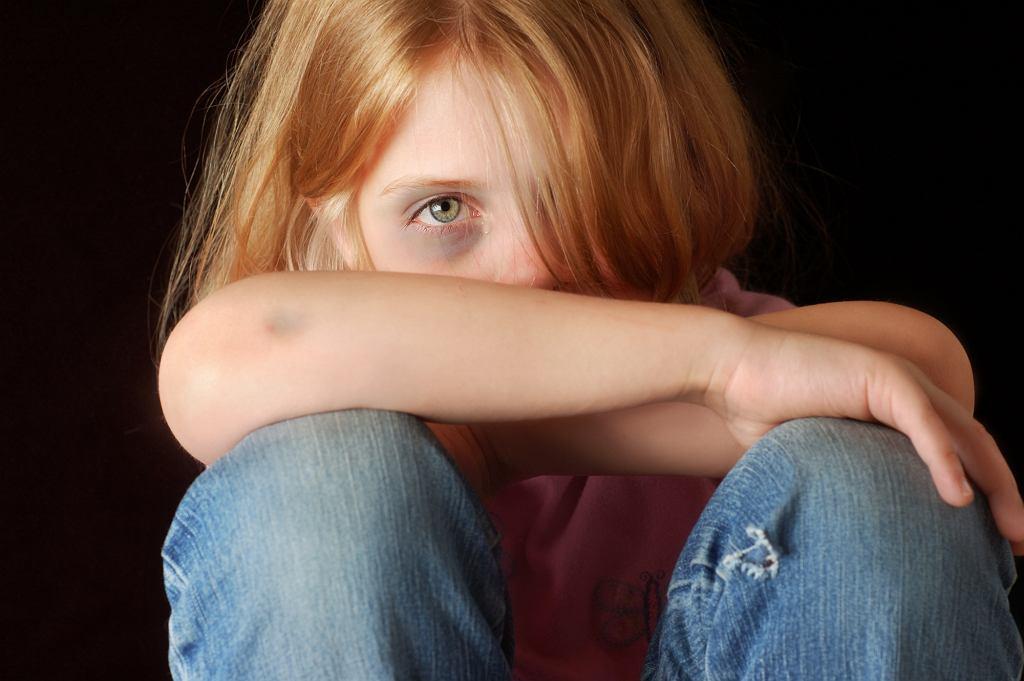 Dzieci są szczególnie narażone na przemoc
