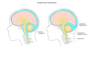 Zespół Arnolda-Chiariego - przyczyny, objawy, leczenie