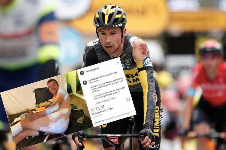Primoz Roglic po wypadku na Tour de France, kolarstwo. Źródło: AP / Instagram