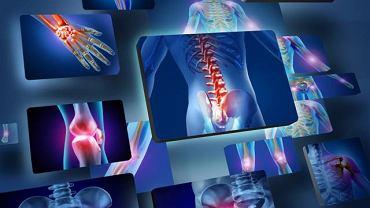 Zmiany w strukturze kości, bóle stawów to jedne z bardziej charakterystycznych objawów homocystynurii