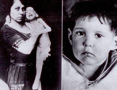 1922 rok, Leonard Thompson był pierwszym pacjentem, u którego zastosowano insulinę. Na zdjęciu po prawej widać efekty półrocznej kuracji, chociaż wciąż trudno uwierzyć, że to czternastolatek.