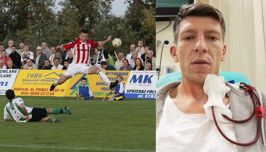 Łukasz Derbich - w 2009 roku podczas meczu Piast Kobylin - Cracovia oraz w 2019 roku podczas dializy