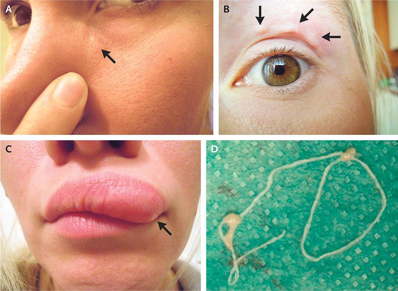 32-letnia Rosjanka padła ofiarą nicienia z gatunku Dirofilaria repens, który zagnieździł się jej pod skórą twarzy