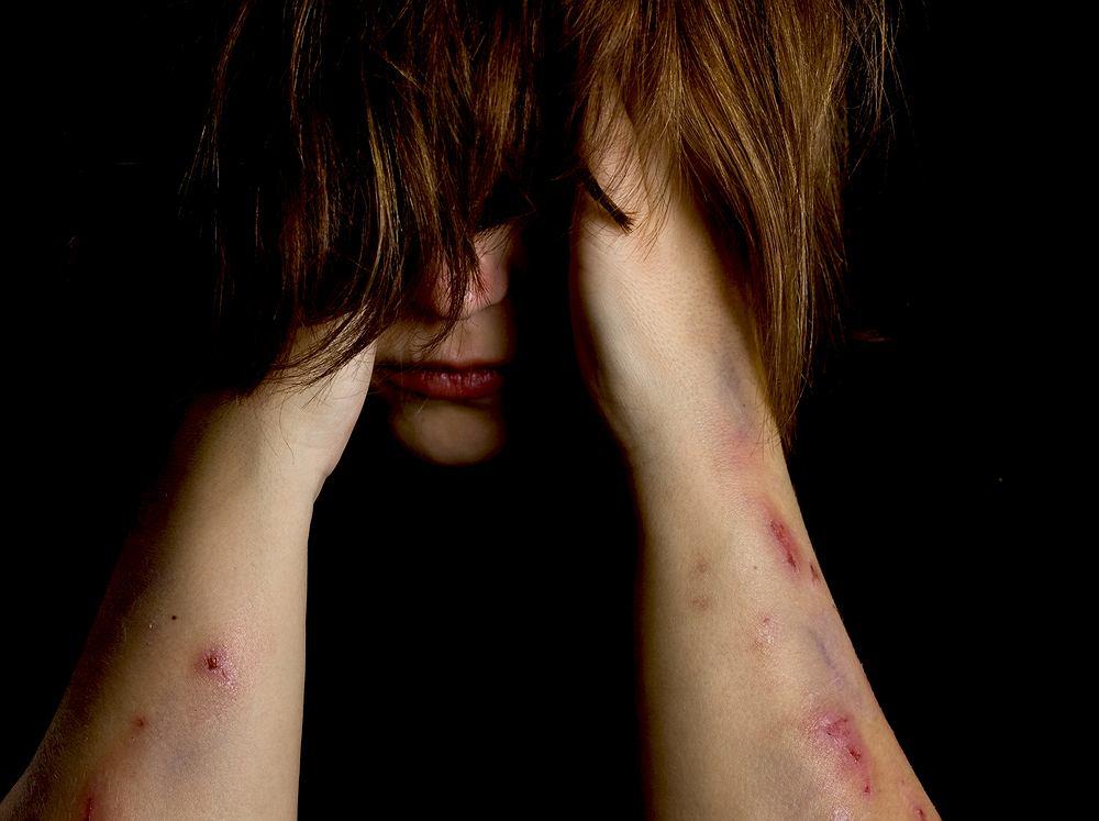 Samookaleczania są wyrazem zaburzeń psychicznych prowadzących do autoagresji