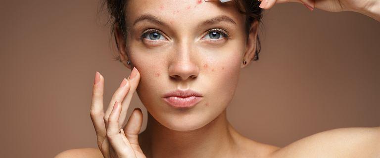 Top 6 kremów do cery problematycznej i skuteczne kosmetyki na popularne problemy skórne