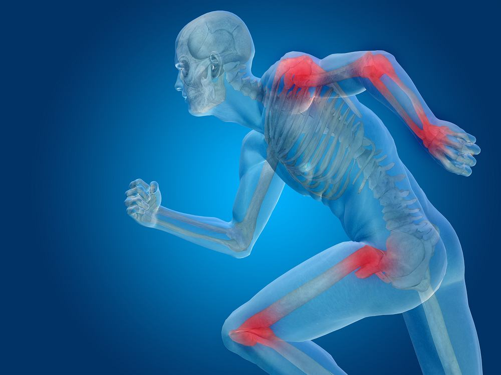 Ból w obrębie stawów może się pojawić z różnych powodów i niezależnie od wieku