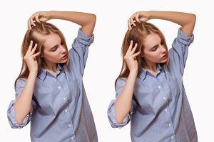 Choroby tarczycy a włosy. Kiedy można podejrzewać problemy z tym gruczołem?