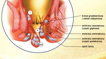 Stopnie zaawansowania choroby hemoroidalnej