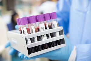 RDW-SD: oznaczenia i wskazania do badań. O czym świadczy wysoki lub niski poziom tego wskaźnika we krwi?