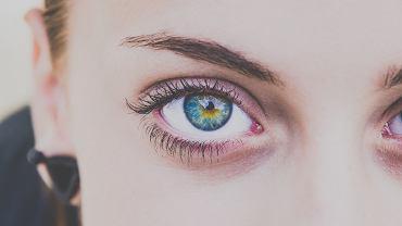 cienie pod oczami (zdjęcie ilustracyjne)