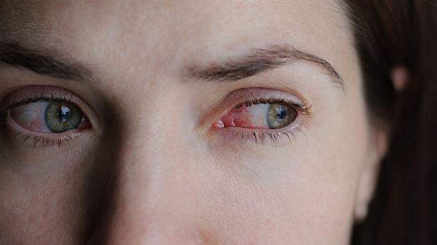 Alergiczne zapalenie spojówek: objawy, leczenie