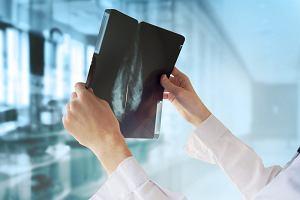 Lek, który o połowę zmniejsza ryzyko raka piersi. Działa nawet siedem lat po zakończeniu leczenia