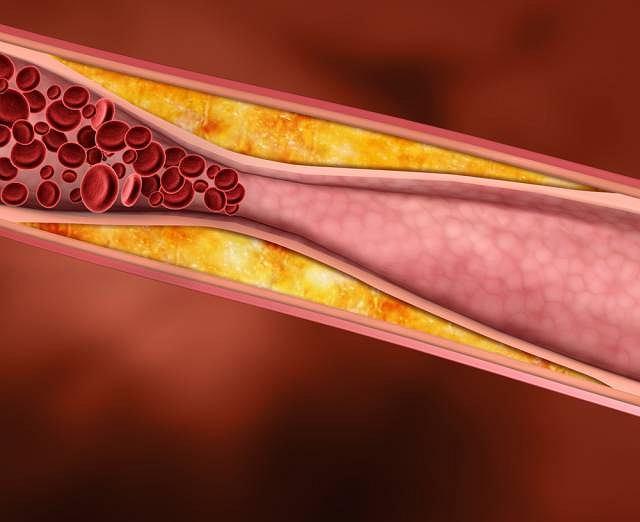 Powstający w tętnicy zator może być bardzo niebezpieczny. Jeśli leczenie farmakologiczne nie przynosi efektów konieczny jest zabieg operacyjny i usunięcie zmienionego fragmentu