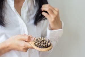 Wypadanie włosów. Jak sobie radzić z nadmierną utratą włosów?