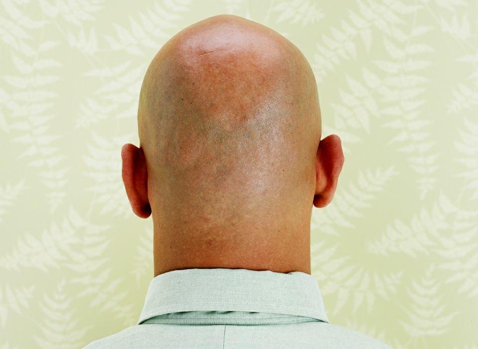 wypadanie włosów u młodych mężczyzn