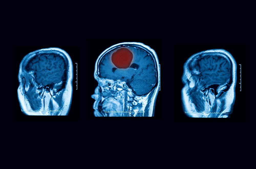 Ropień mózgu to schorzenie, u którego podłoża leży zapalenie ropne ośrodkowego układu nerwowego