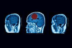 Ropień mózgu - przyczyny, objawy, leczenie