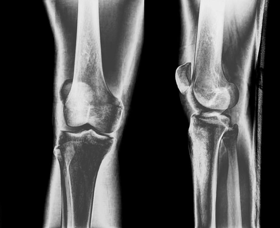 artroza jakie badania inflamațiile umărului recenzii