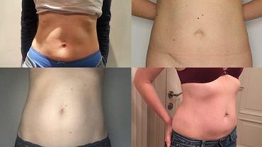 Jak wygląda brzuch po ciąży? Czy już zawsze będzie inny?
