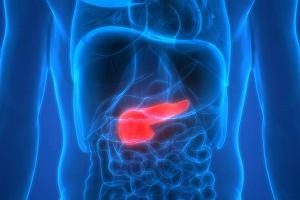 Insulinoma (guz insulinowy, wyspiak) - nowotwór trzustki. Objawy i leczenie insulinomy