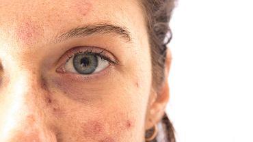 Ciemnobrązowe lub brunatne przebarwienia na twarzy kojarzy się najczęściej z konsekwencją zbyt długiego przebywania na słońcu w okresie letnim