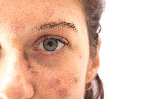 Przebarwienia na twarzy - skąd się biorą, jak się ich pozbyć?