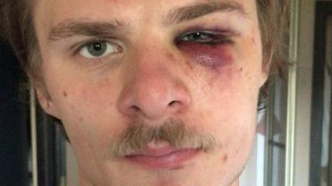 Jakub Florczyk został pobity w nocnym autobusie po zwróceniu uwagi mężczyźnie wyzywającemu innego pasażera od pedałów