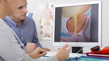 O sposobie leczenia łagodnego przerostu stercza decydują przede wszystkim dolegliwości pacjenta i ewentualne zaleganie moczu w pęcherzu