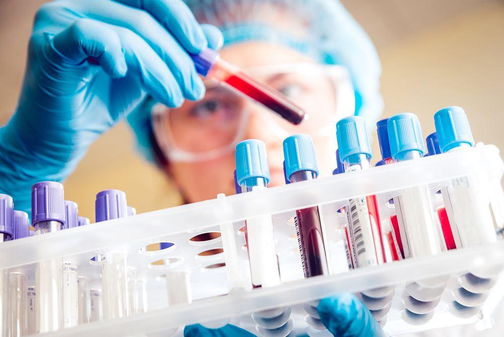 Badanie ALT to część część zestawu diagnostycznego, jakim są próby wątrobowe.