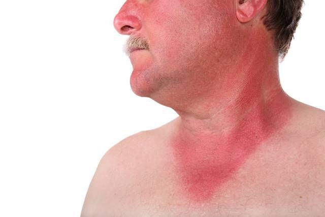 Mocno zaczerwieniona skóra, a czasem bąble pojawiające się, po nawet krótkim, wystawieniu skóry na słońce mogą oznaczać alergię