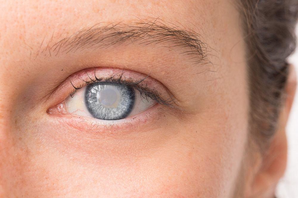 Katarakta to schorzenie oczu polegające na zmętnieniu soczewki oka